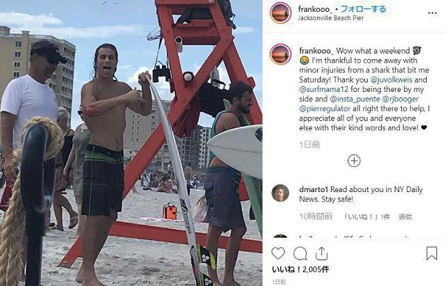 Shark-Attack-Florida